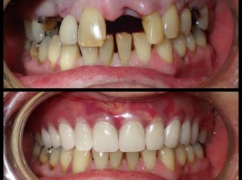 immidate upper denture