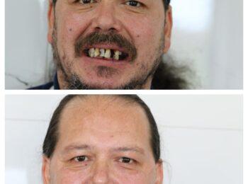 Ardmore Dental we change smiles